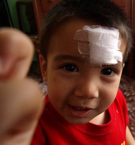 ¿Cómo actuar en caso de accidente doméstico (I)?: Heridas.