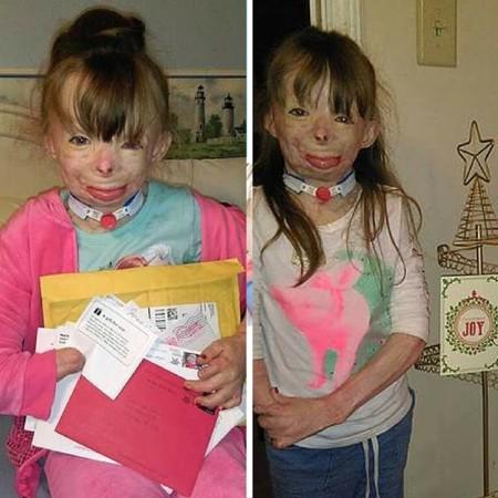 El conmovedor deseo de Navidad de una niña que perdió a su familia en un incendio