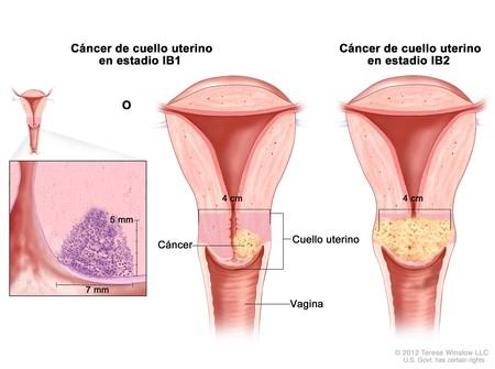 cancer-cuello-utero