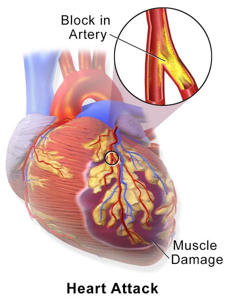 Nuevo fármaco potencial para tratar los daños cardíacos tras un ataque al corazón