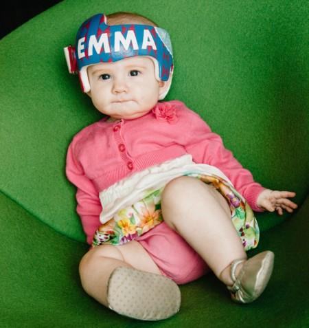Una niña con plagiocefalia recibe el casco corrector más bonito decorado por un equipo de Disney