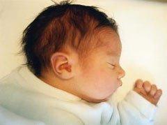 ¿Es el test de Apgar una valoración objetiva del recién nacido?