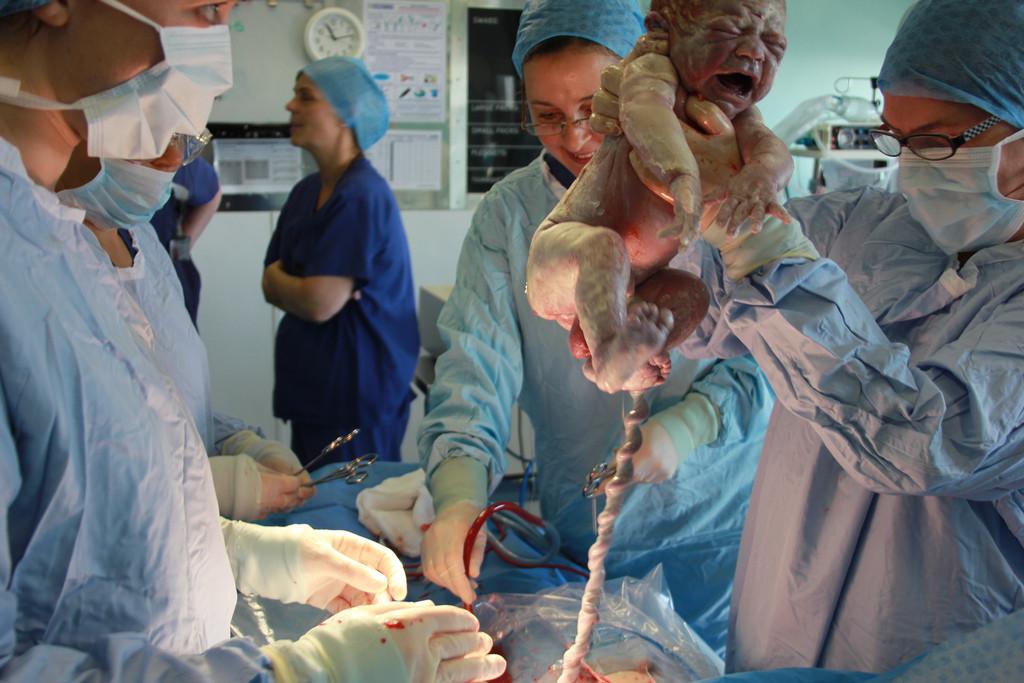 desprendimiento de utero despues del parto