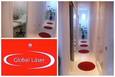 Limpieza facial con dermoabrasión en Global Láser, mi experiencia