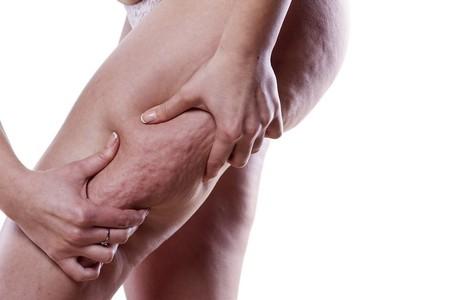 Alimentación y celulitis, ¿es posible deshacernos de ella con una dieta mejor?