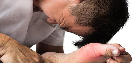 Ácido úrico: ¿protector o factor de riesgo? Todo lo que necesitas saber