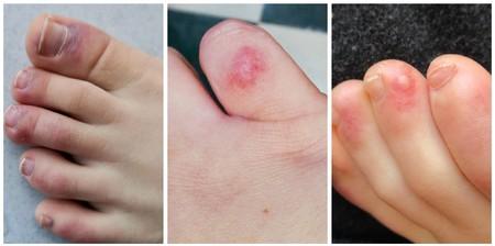 Sabañones en pies y manos, urticaria y lesiones con vesícula, otros posibles síntomas de infección por coronavirus