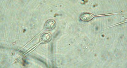 Este parásito es el primer organismo multicelular descubierto que no necesita oxígeno para vivir
