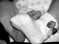 Nace en China un bebé con dos cabezas
