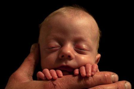 Los bebés prematuros corren cinco veces más riesgo de desarrollar autismo
