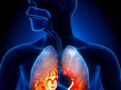 Perder peso, una mejora para el asma en personas obesas