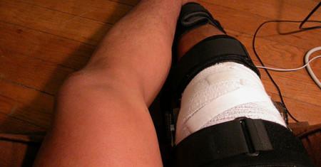 Identificado un nuevo ligamento en la rodilla