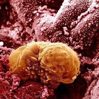 Semana 4 de embarazo: la implantación del embrión