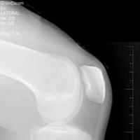 Revisión de tratamientos para la artrosis de rodilla