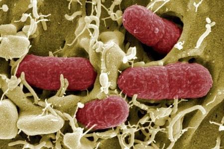 e.coli-infeccion-ninos