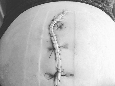 Comparte orgullosa la cicatriz vertical de su cesárea que permitió que naciera su bebé