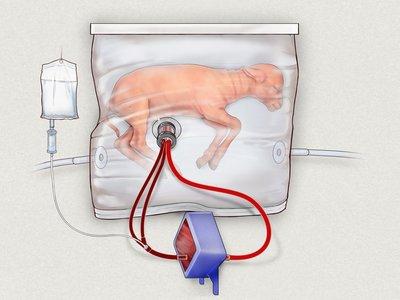 Ovejas bebés crecieron con éxito dentro de este útero artificial; y los humanos serán los siguientes