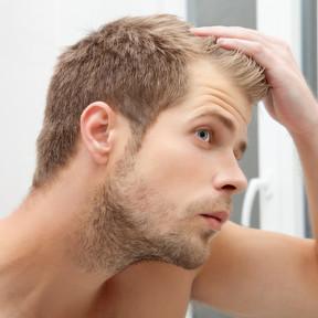 Así es como tu dieta puede ayudarte a controlar la alopecia