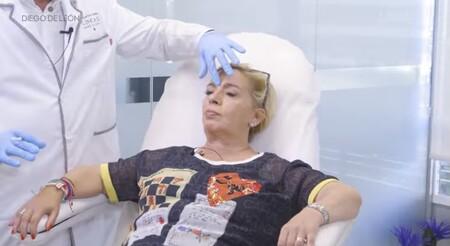 Carmen Borrego se pincha la cara