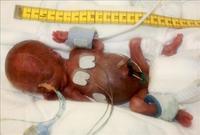 El bebé varón nacido con menos peso ha logrado sobrevivir