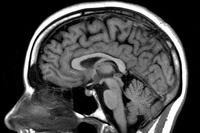 El Cerebro, evolución y funcionamiento (I)