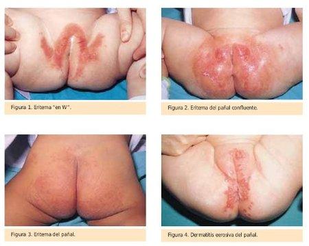 Dermatitis del panal tipos