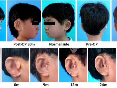 Uno de cada 6.000 niños nace sin orejas, estos investigadores han usado una impresora 3D para crearles una