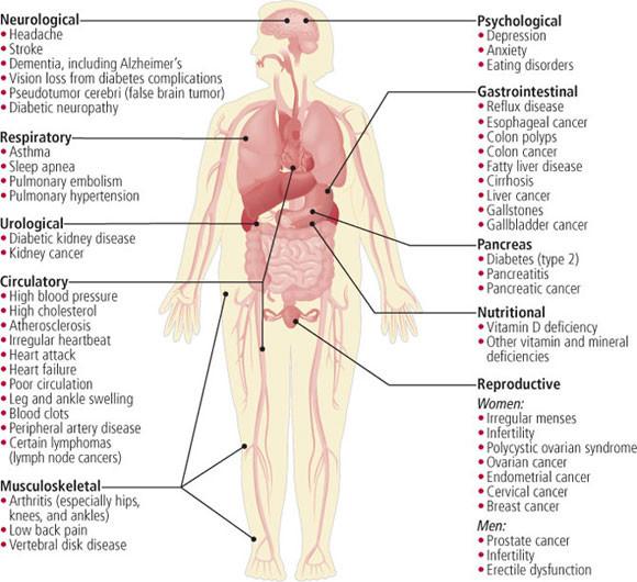 problemas-salud-sobrepeso