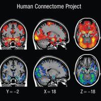 Llevamos 15 años estudiando la actividad cerebral de forma errónea. Y hay cientos de estudios equivocados