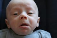 Higiene, contaminación y alimentación aumentan el número de niños alérgicos