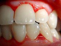 Enfermedades relacionadas con las encías: un problema que afecta a la mayoría de españoles