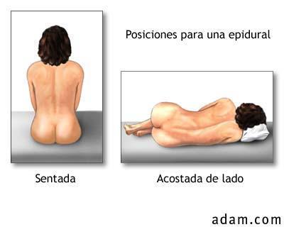 epidural-posiciones