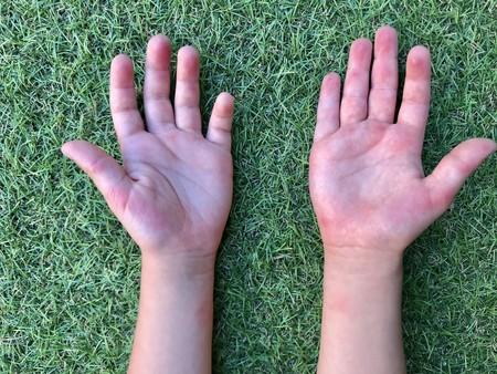 'Pulpitis de las piscinas', una lesión de la piel común en los niños en los meses de verano