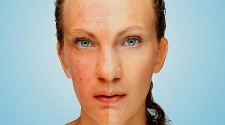 Vitamina B5 para combatir el acné