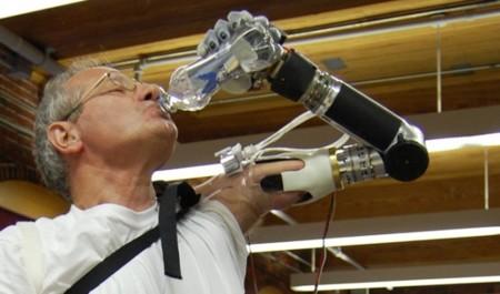 La FDA aprueba una prótesis que reconoce los movimientos que deseamos hacer