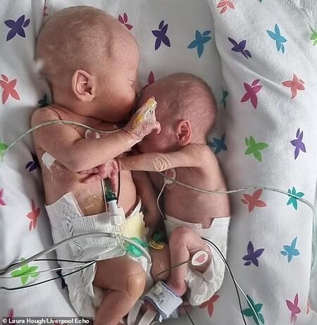 La emotiva imagen de dos gemelos abrazados y cogidos de la mano, tras encontrarse por primera vez dos semanas después de nacer