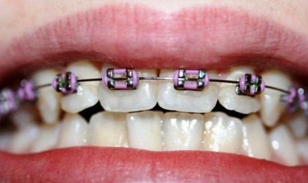 Adaptando la dieta a la ortodoncia