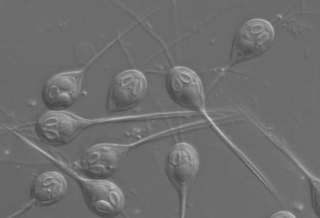 Este parásito microscópico no necesita oxígeno para sobrevivir en el fondo del mar