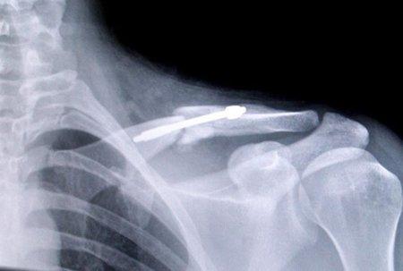 Clavicula fractura operada