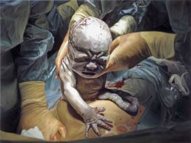 Pinturas hiperrealistas de una cesárea, por Damien Hirst
