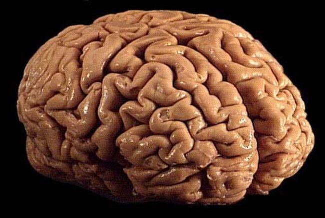 Cortando el cerebro millones de veces en lonchas finísimas… durante veinte años