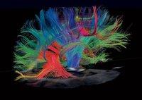 ¿El ser humano sólo utiliza el 10 % de su capacidad mental? (II)