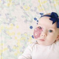 Su madre pide que vean a la preciosa bebé detrás del hemangioma