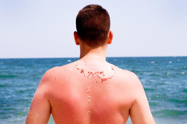 piel-sol-quemadura
