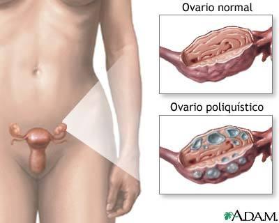 Ovarios poliquisticos
