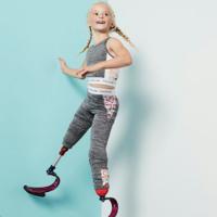 Con siete años, esta niña modelo sin piernas es todo un ejemplo de superación