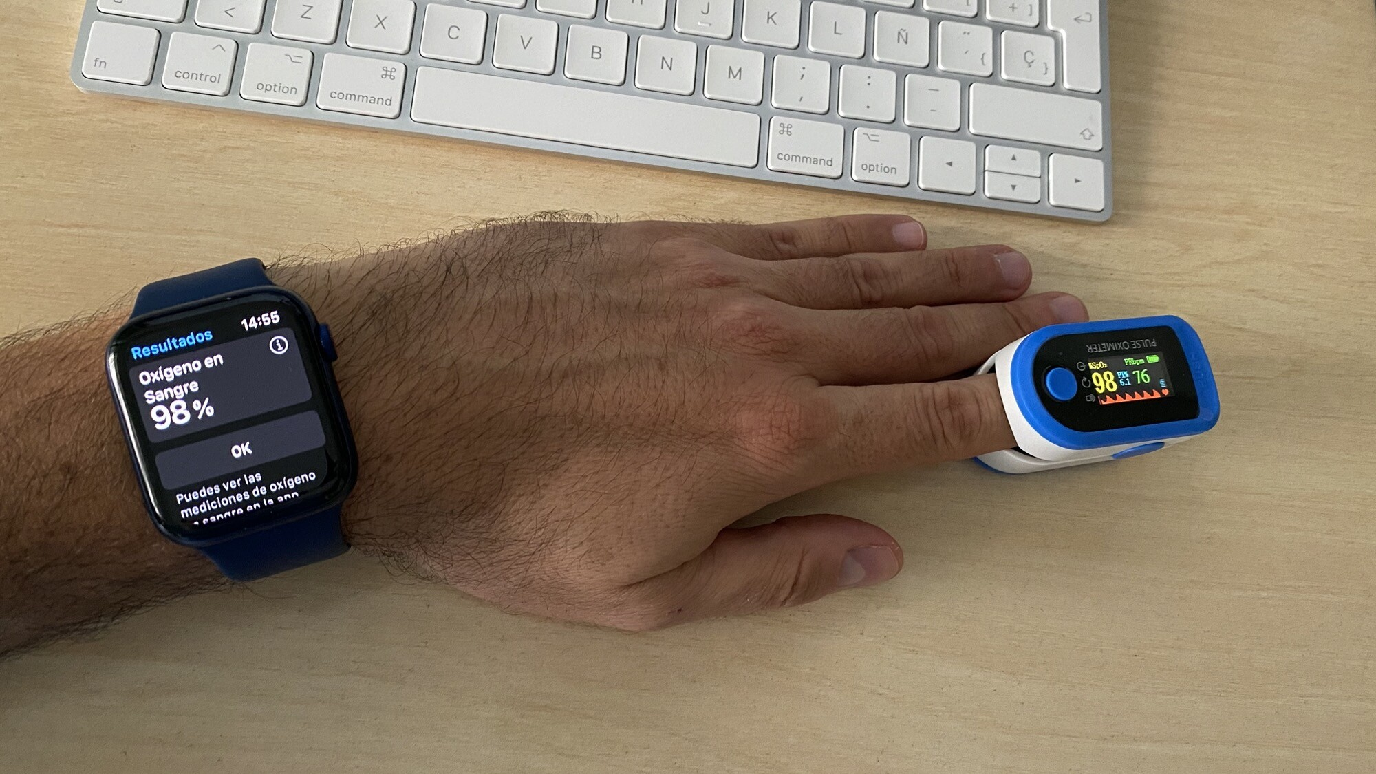 Foto de Mediciones simultáneas SpO2 con Apple Watch Series 6 y pulsioxímetro de dedo (11/12)