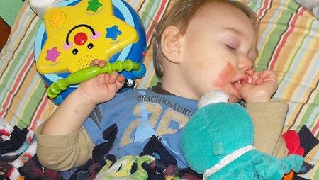 Alergias en los bebés: Dermatitis de contacto