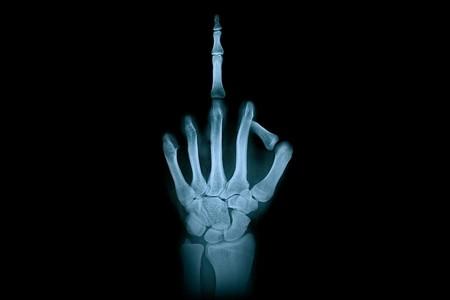 Hand 2194167 960 720