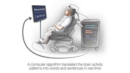 Neuroprosthesis Restores Words To Man With Paralysis 00 00 51 21 Imagen Fija004